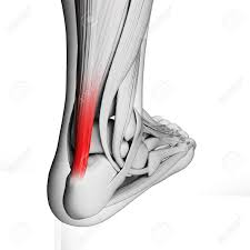 achilles pain or sore heel pain